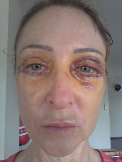 Are You Ready for An Eyelid Lift? Blepharoplasty Surgery ... |Lower Blepharoplasty Recovery Photos