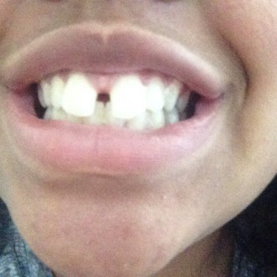 how to fix gaps in teeth with braces