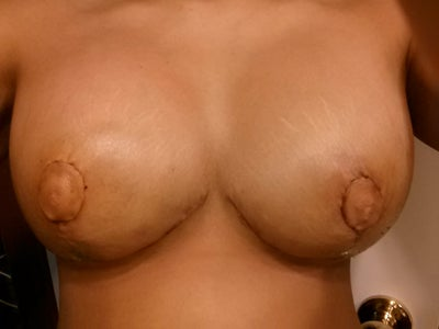 lift minneapolis breast