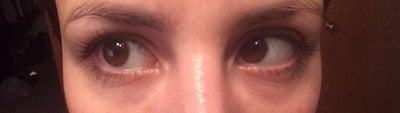Thin skin Juvederm ultra plus. Now Lump under eye ...