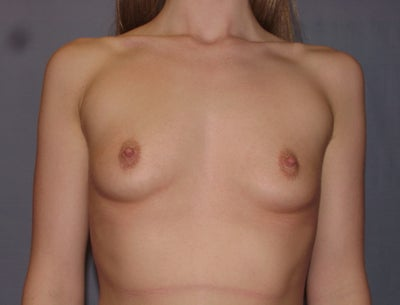 Belly button breast augmentation fort worth