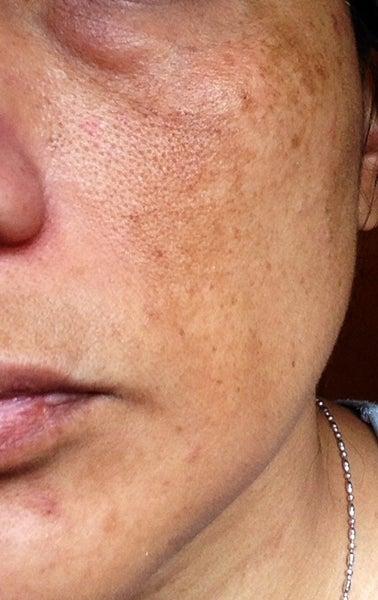 Facial Sun Spots 102