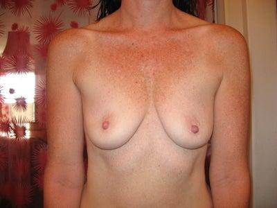 post pregnancy breast photos