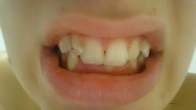 How long would it take to straighten my teeth if I get ...