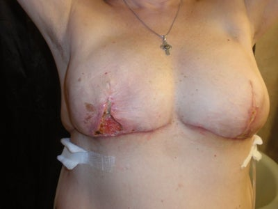 Breast reconstruction necrosis