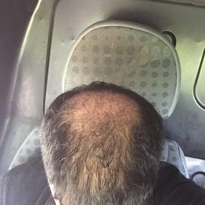 Propecia making hair loss worse