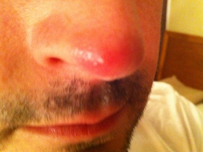 Does my nose look like a penis