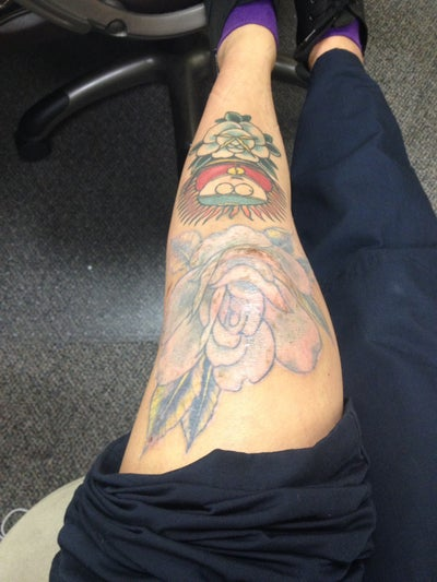 Get this off of me picosure laser tattoo removal on knee for Picosure tattoo removal maryland