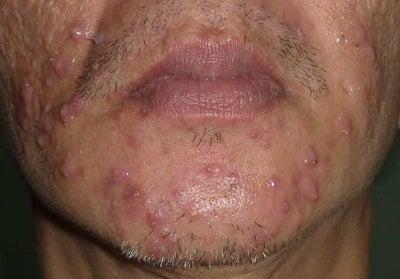 Acne prednisone