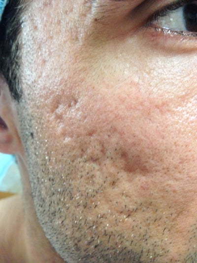 Acne Scarring treated with Subcision and Fat Grafting ...