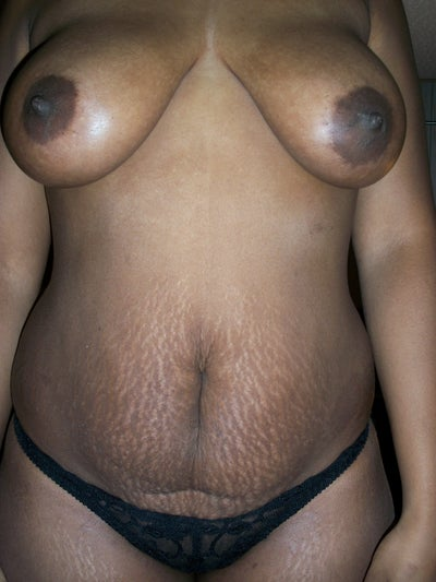african american with breast lift