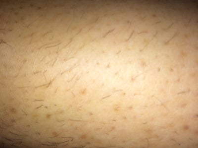 how to get rid of ingrown hair scars on legs