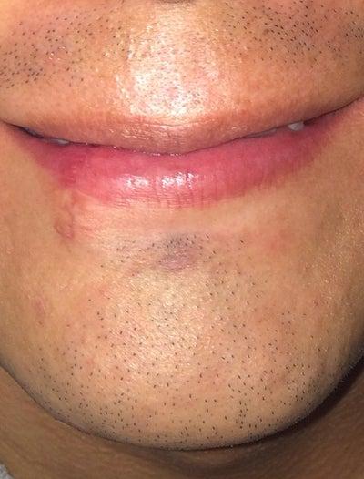 Dog Bite My Lip