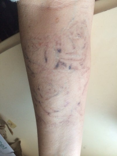 Large rose tattoo regret picosure review realself for How much is picosure tattoo removal