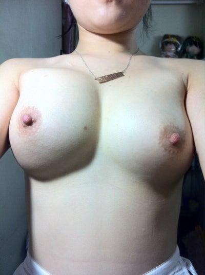 breast hardening implant