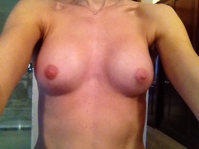 augmentation chicago recovery breast