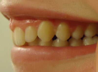 Do I Need Braces To Fix My Overbite? Any Other Accessories ...