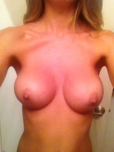 my breast surgery jpg 1200x900