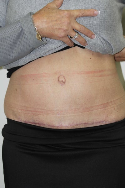 Tummy Tuck Review After Being Botched Up Overseas