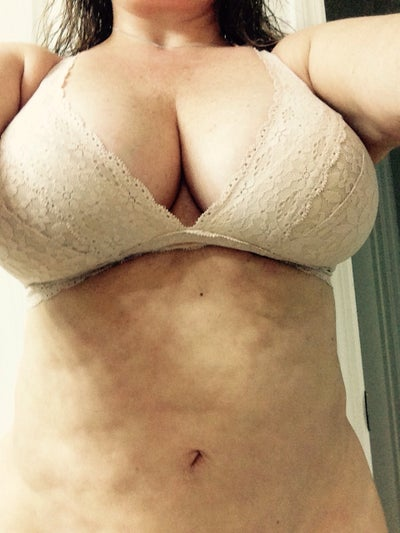 Any Suggestions On Tummy Tuck After Laser Lipo Photos