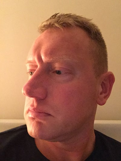 Is Rhinoplasty the only way to fix crooked nose ? (photos ...
