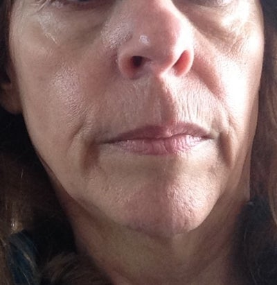 Fastest non surgical treatment for facial wrinkles? (Photo ...