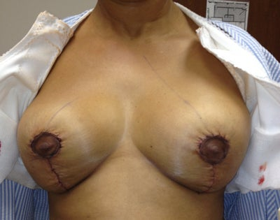 cost of breast implants in columbus ohio