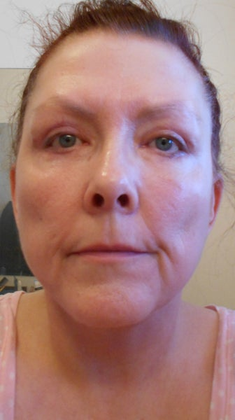 Sciton Contour Ablative Laser Resurfacing After Face And