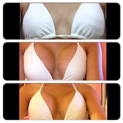 how to fix rippling breast implants