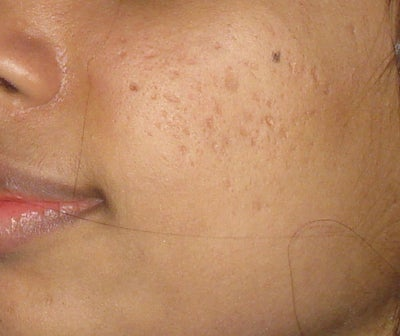 how to get rid of cystic acne on cheek