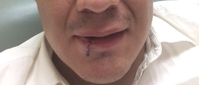 Dog Bite Lip Scar