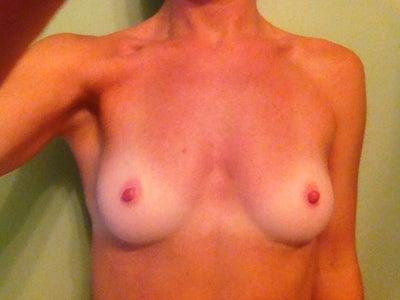 34a breast pics