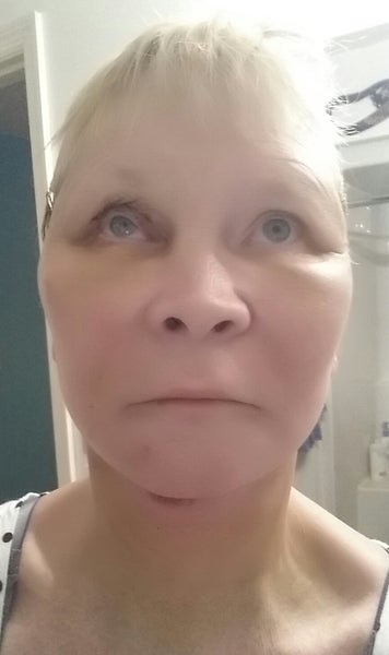 Facial bruising after fat grafting