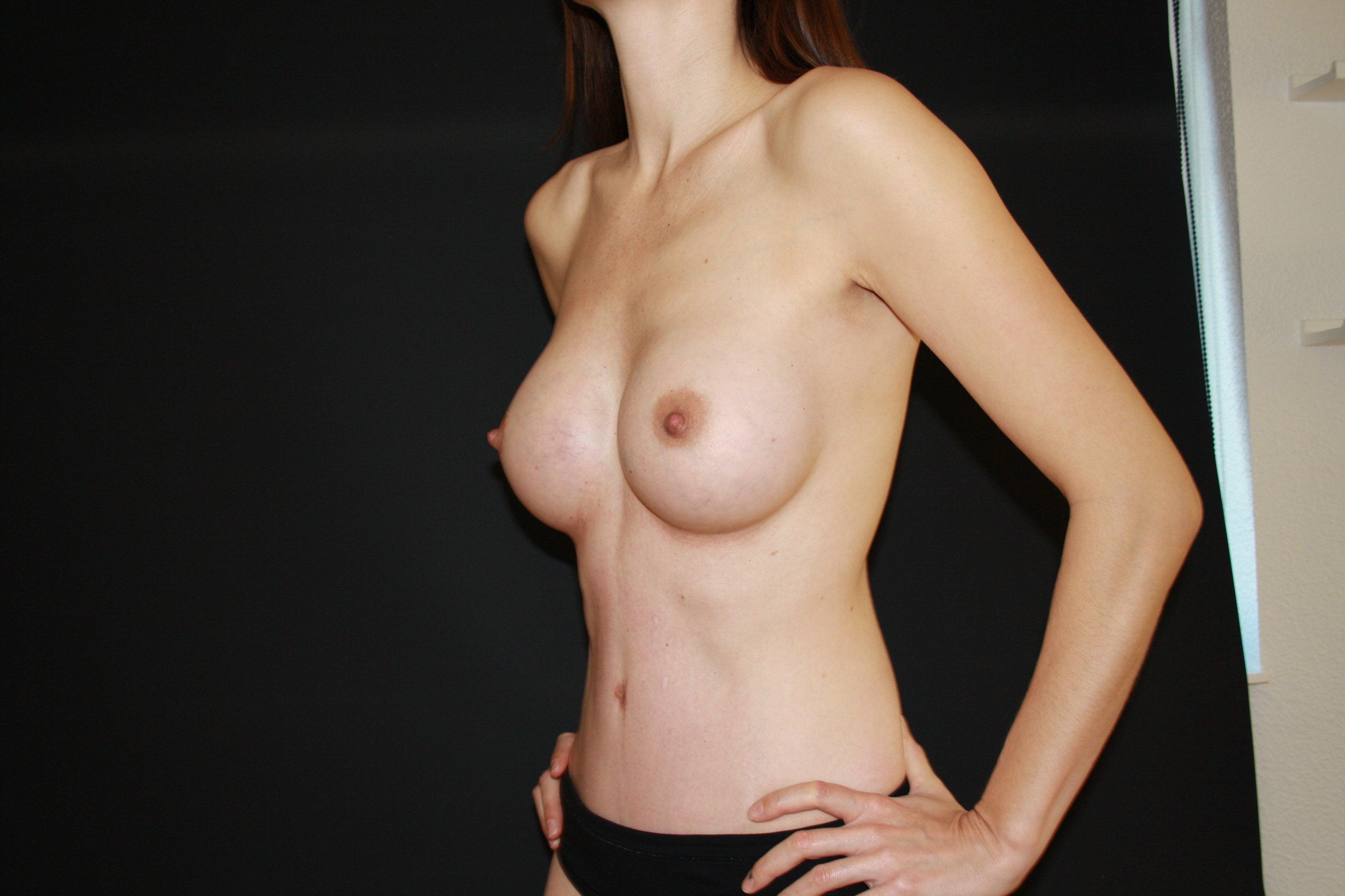 Телки с грудью 2 размера, 2 размер груди: как выглядит голая, красивая сиська 3 фотография