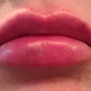 Lips after: ~ 4:30 p.m. day of injection (within 2 hours), look good, minor bruising, barely swelling, applied  Auriderm post-op gel (Vit. K gel for bruising) liberally, and iced lips.