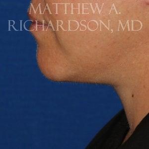 dr richardson fogyás vélemények