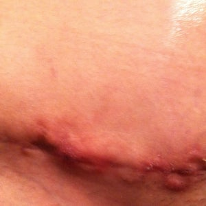 Tummy Tuck Incision Healed But Bleeding Is This Normal Photos