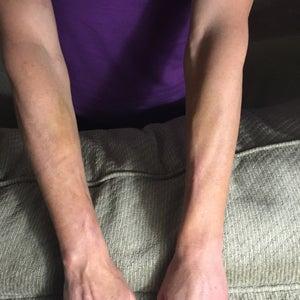 operațiunea laser varicose venels recenzii cum se tratează vene varicoase în timpul sarcinii