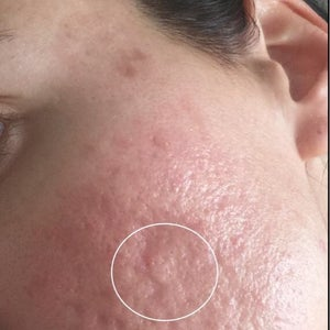 Acne Scars Treatment Reviews Was It Worth It Realself