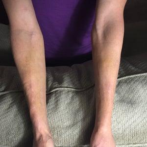 operațiunea laser varicose venels recenzii