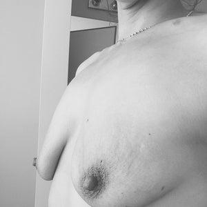 Breast Implants image
