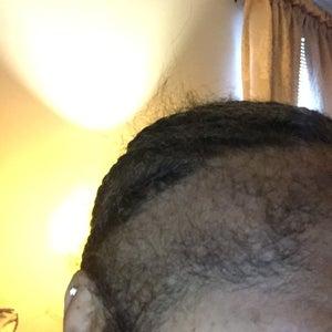 Hair Transplant image
