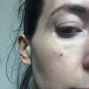 Bruising On Face Post Pulse Dye Laser Treatment Any Suggestions