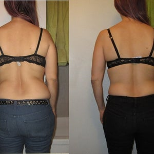 lpg slimming review)