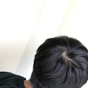 What Are Your Thoughts On Starting Finasteride At My Stage Photo
