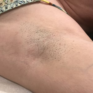 Laser Hair Removal Reviews Was It Worth It Realself