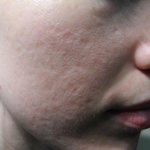 Acne Scars Treatment image