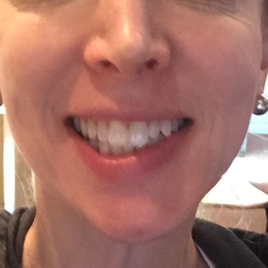 Botox ruined my smile 3 months in still a mess. Any suggestions? (photos)