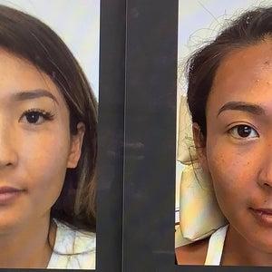 facial slimming review botox pierde grăsimea de burtă inferioară în 3 luni