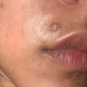 For piercing scars mederma Does Mederma